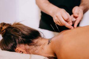 Sesión de acupuntura para trata la ansiedad